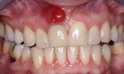 abscesso no dente