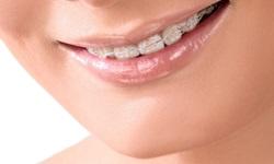 Aparelho dental invisível