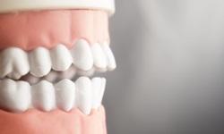 Como eliminar placas nos dentes