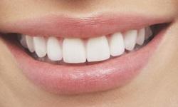 consórcio odontológico