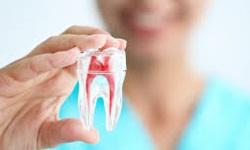 Dente canal
