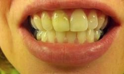 Dentes amarelos causa