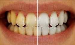 dentes amarelos como clarear