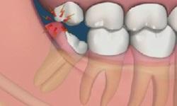 Inflamação do dente
