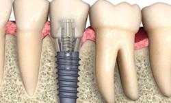 Plano odontológico cobre implante dentário