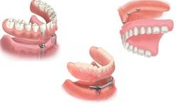 Plano odontológico com direito a implante