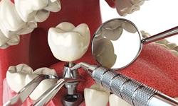 tratamento dentário preço