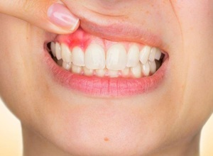 abcesso dentário
