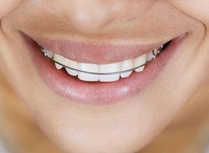 Por que usar aparelho dental