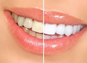 aparelho laser para clareamento dental