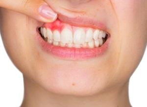 bochecho para dente inflamado