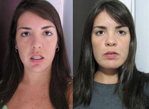 cirurgia de mandíbula antes e depois
