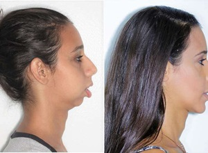 cirurgia ortognatica classe 2