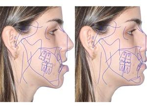 cirurgia ortognática como é feita