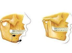 cirurgia ortognatica custo