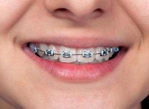 Colocando aparelho nos dente