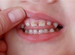 como tirar cárie do dente