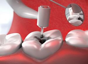 dente cárie