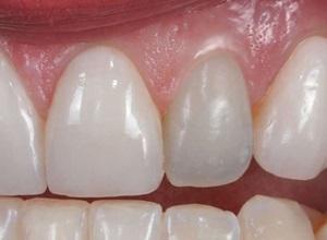 dente com canal aberto