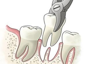 dente do siso extração