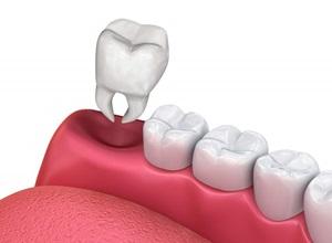 dente extraído cicatrização