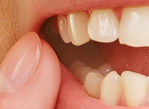 dente infeccionado com pus