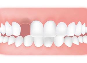 dente para fazer canal