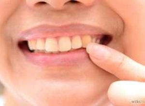 dentes amarelos como resolver