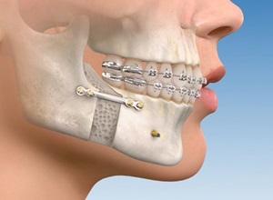 enxerto ósseo para implante dentário preço