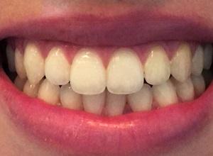 limpeza dos dentes com bicarbonato