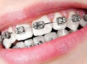 melhor seguro dentário para aparelho