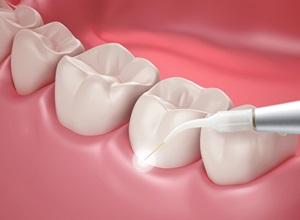 periodontite cura