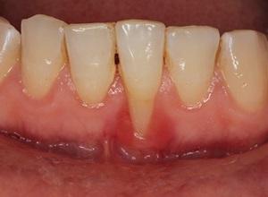 periodontite fotos