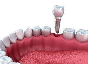 plano dentário cobre implante