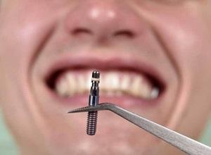 plano odontológico com implante