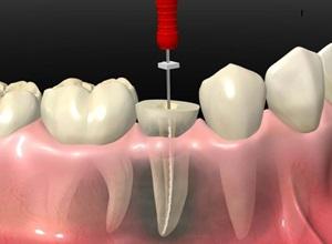 quanto custa fazer canal no dente