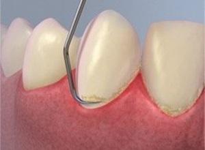 raspagem dos dentes