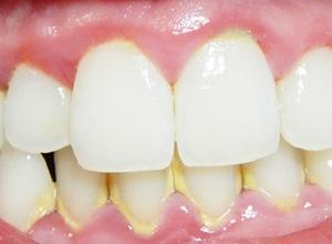 retirando tártaro dos dentes