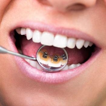 Aparelho dentário interno