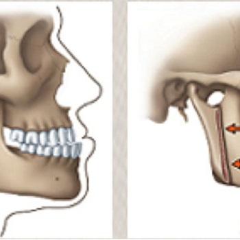 Cirurgia ortognática classe 2 antes e depois