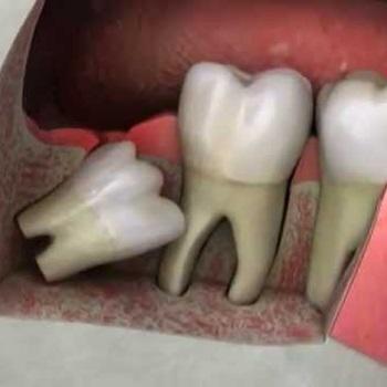 Dente siso após extração