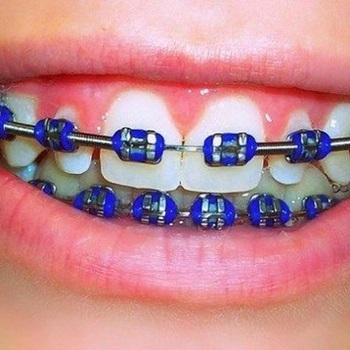 Dentes amarelos com aparelho