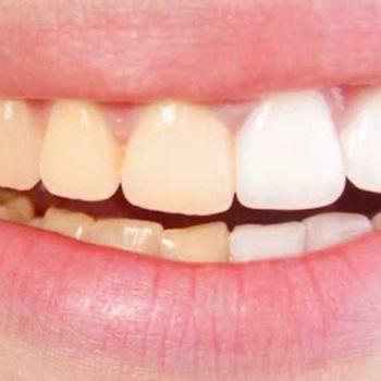 Dentes amarelos são mais fortes