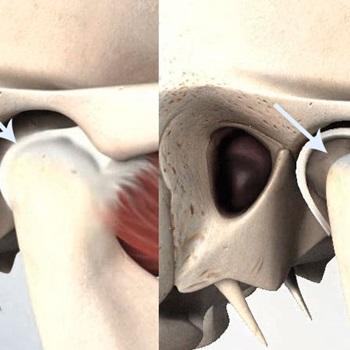 Disco mandibular