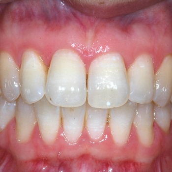 Doenças dos dentes e gengivas fotos