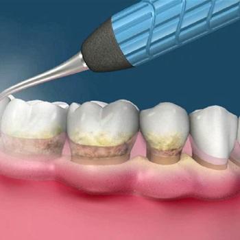 Enxerto de gengiva sobre implante