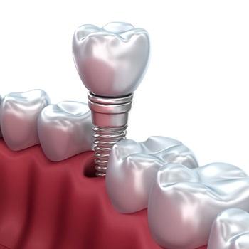 Implante carga imediata preço
