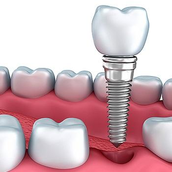 Implantes dentários carga imediata preços