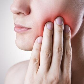 Inflamação dente siso
