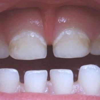 Mancha branca no dente do bebe